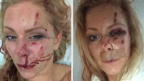 27020264-Nanna Skovmand overfaldet