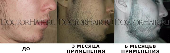 -для-бороды