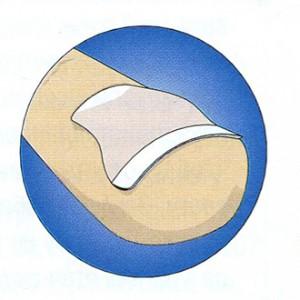 О чем молчит маникюр: как определить болезнь по ногтям