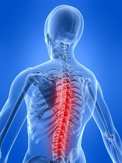 osteohondroz-radikulit-lechenie-klinika-vosstanovitelnoy-nevrologii-1